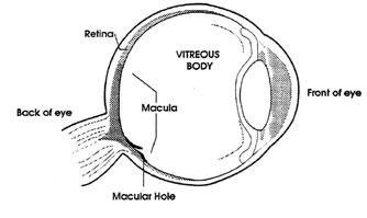 Why facedown recovery understanding macular hole surgery why facedown recovery ccuart Gallery